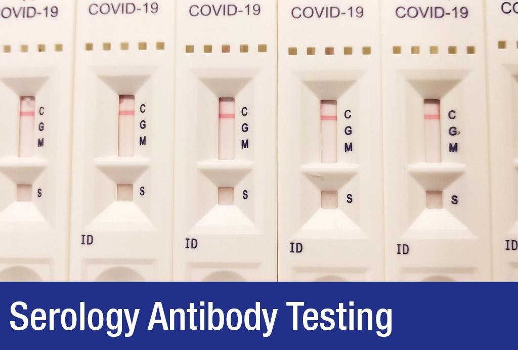 Covid 19 serology antibody testing
